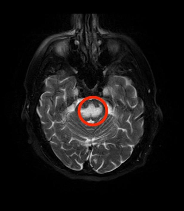 MRI_Central_Pontine_Myelinolysis_fat_sat_T2.jpg