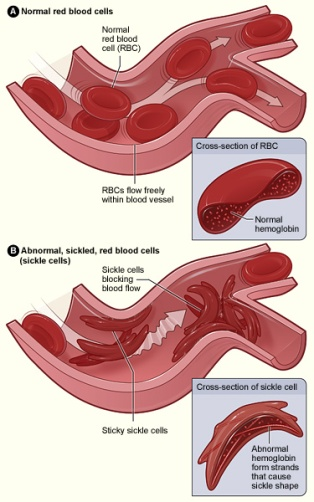 Sickle_cell_01