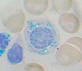 Ringed Sideroblast