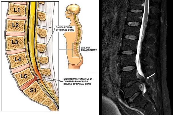 sagittal compared